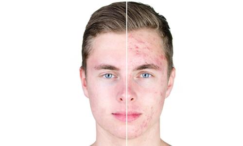 Acne behandeling Echt - Skinics in Echt - Schoonheidssalon Echt - Schoonheidsspecialiste Echt