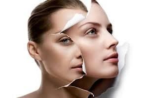 Skinics-Anti-Aging-gezichtsbehandeling-huidverjonging-huidverbetering